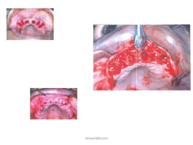 Bone graft for implant      dentistry         ikassem@dr.com