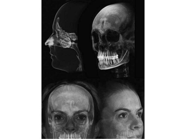 Diagnosis and Treatment Planning For Bone Augmentation            Radiographic Examination   • Panoramic radiograph   • 20...