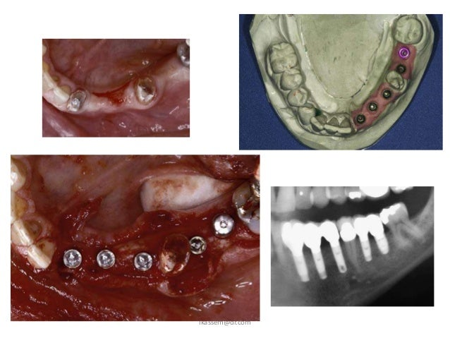Factors that impact on fit: atrophy1. Atrophy    a. Decreasing bone    b. Increasing soft tissue