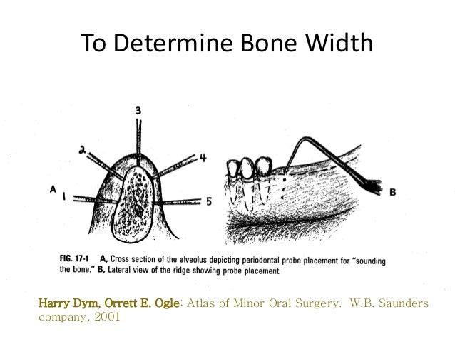 GRAFTS• Autogenous bone• Freeze dried bone• Synthetic biomaterials                    ikassem@dr.com