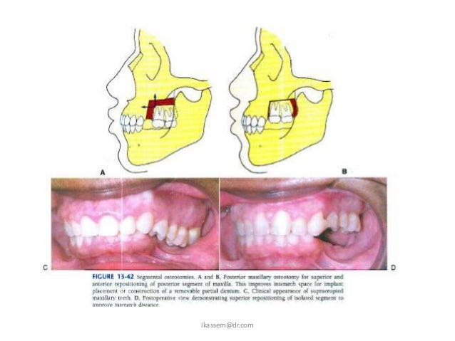 Anatomic LimitationsBuccal Plate                       0.5mmLingual Plate                      1.0 mmMaxillary Sinus      ...