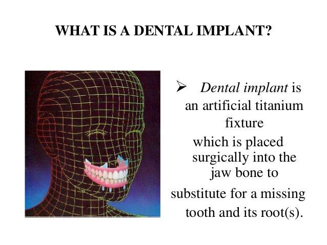 WHAT IS A DENTAL IMPLANT?              Dental implant is               an artificial titanium                       fixtu...