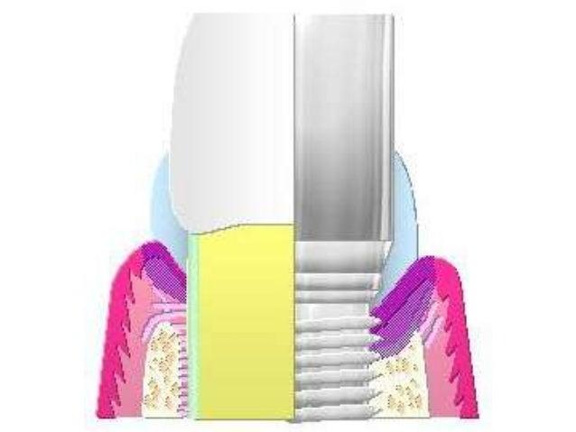 "The ""Parts""• Implant body-fixture• Abutment (gingival/temporary healing vs.  final)• Prosthetics"