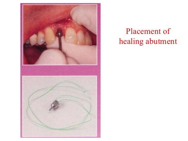 Patient Evaluation• Medical history  – vascular disease  – immunodeficiency  – diabetes mellitus  – tobacco use  – bisphos...