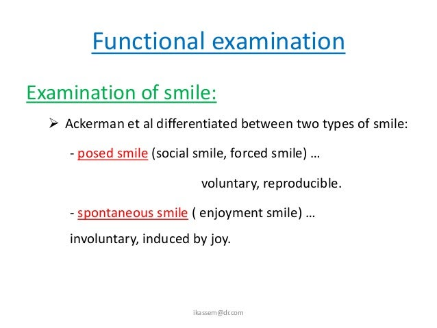  Smile related to natural dentition: (SMILE  LINE) - posed smile … the      smile-line is at the        gingival margin. ...