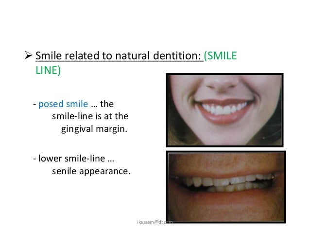 SMILE LINE      FEMALE                                   MALE   MORE GINGIVAL DISPLAY   LESS GINGIVAL DISPLAY             ...
