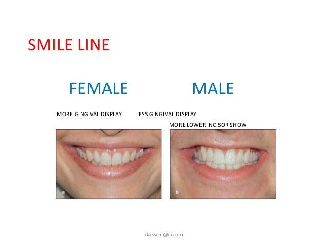SMILE ARC:   NORMAL                          REVERSE    (CONSONANT)                  ikassem@dr.com