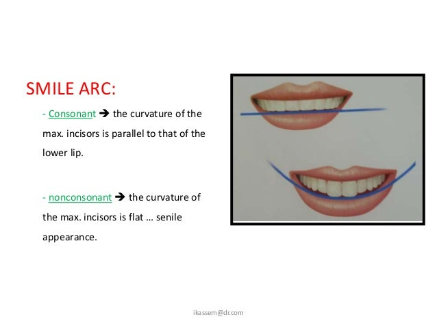 Transverse dimension of smile:  - broad smile … 1st molar may be shown                       at the commissures.  - buccal...