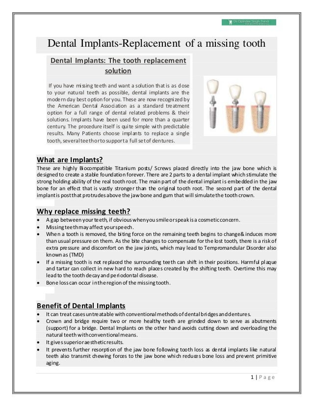 1 | P a g e Dental Implants-Replacement of a missing tooth What are Implants? These are highly Biocompatible Titanium post...