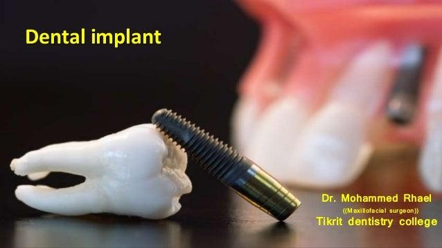 Dental implant Dr. Mohammed Rhael ((Maxillofacial surgeon)) Tikrit dentistry college