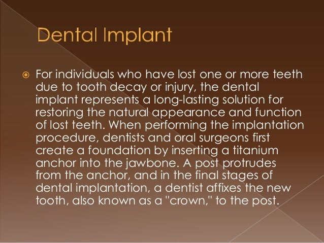 Dental Implants A Permanent Solution For Lost Teeth