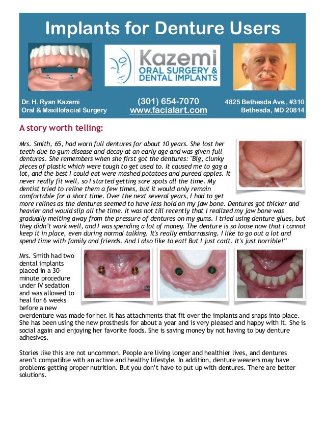 Dr. H. Ryan Kazemi Oral & Maxillofacial Surgery A story worth telling: ! Mrs. Smith, 65, had worn full dentures for about ...