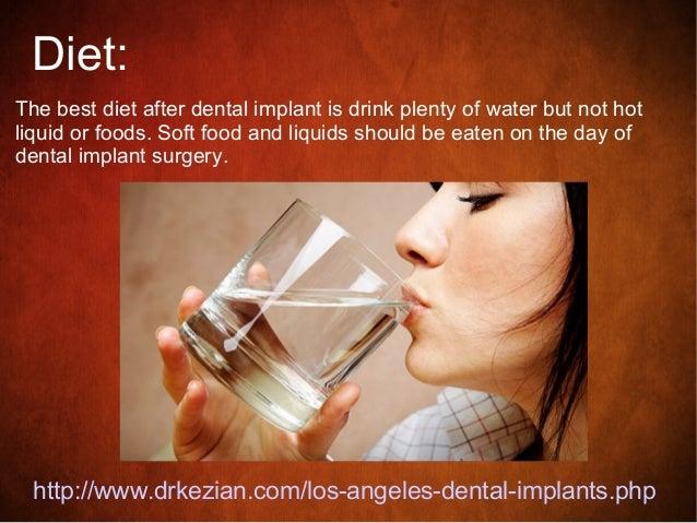 4 Diet The Best After Dental