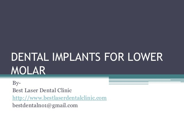 DENTAL IMPLANTS FOR LOWER MOLAR By- Best Laser Dental Clinic http://www.bestlaserdentalclinic.com bestdentalno1@gmail.com