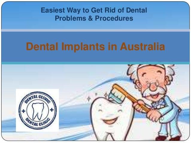 Easiest Way to Get Rid of DentalProblems & ProceduresDental Implants in Australia