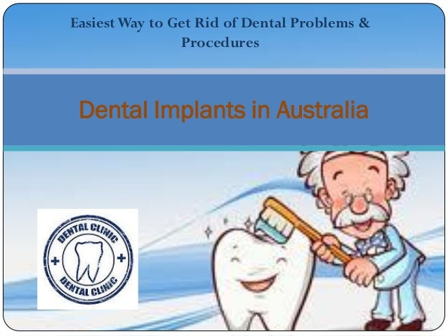 Easiest Way to Get Rid of Dental Problems &                Procedures Dental Implants in Australia