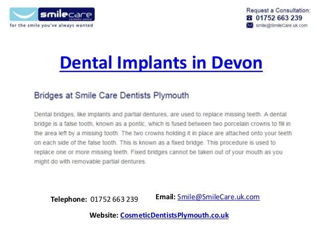 Dental Implants in Devon Telephone: 01752 663 239 Email: Smile@SmileCare.uk.com Website: CosmeticDentistsPlymouth.co.uk