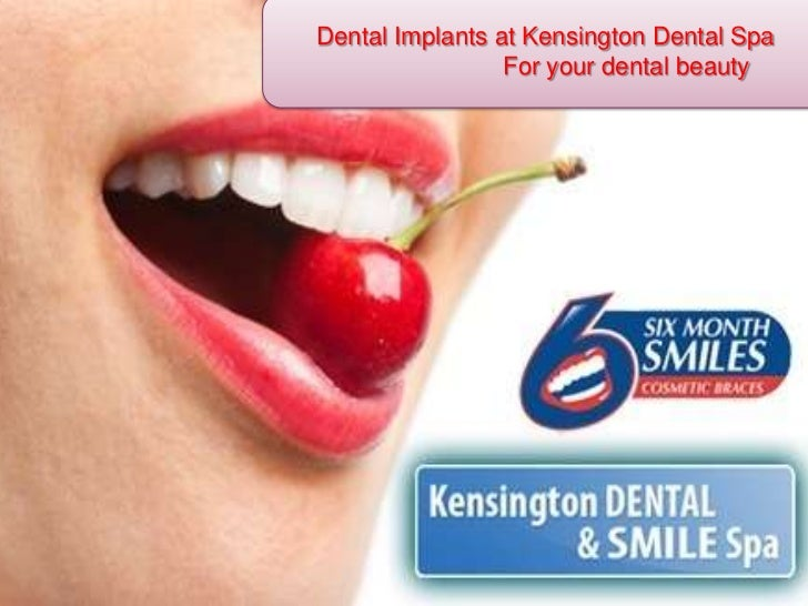 Dental Implants at Kensington Dental Spa<br />		For your dental beauty<br />