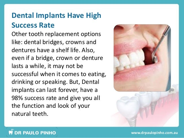 Dental Implants In Sydney Facts And Myths