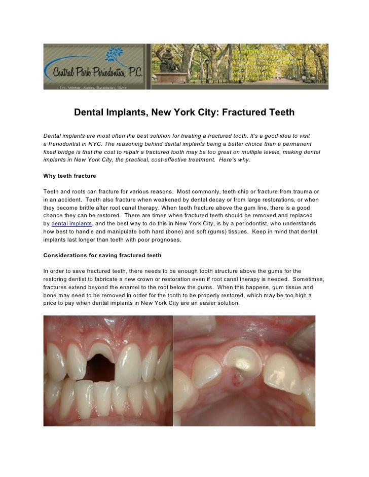 Dental Implants, New York City: Fractured TeethDental implants are most often the best solution for treating a fractured t...
