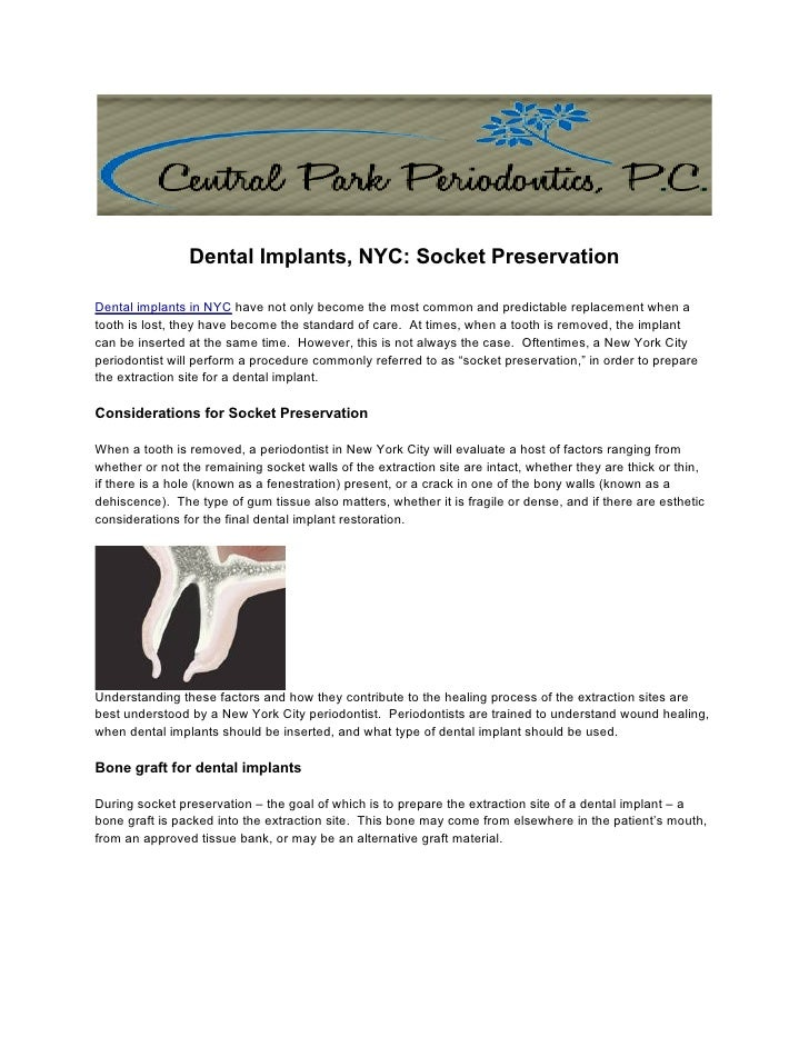Dental Implants, NYC: Socket PreservationDental implants in NYC have not only become the most common and predictable repla...