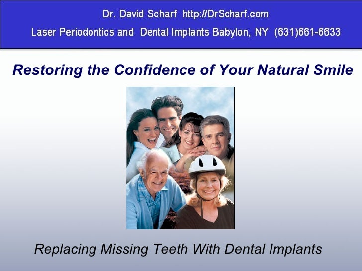 Restoring the Confidence of Your Natural Smile Replacing Missing Teeth With Dental Implants