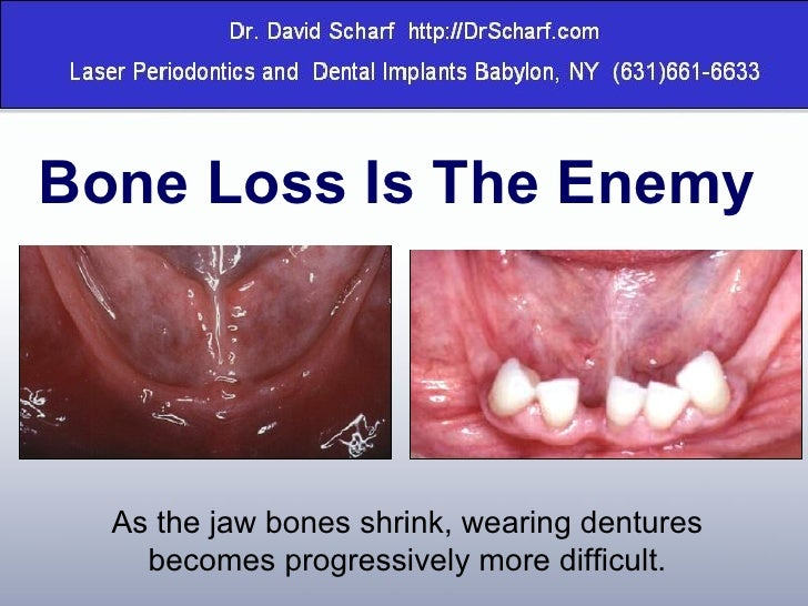 Secure Denture Adhesive >> Replacing Missing Teeth with Dental Implants on Long Island, Dental i…
