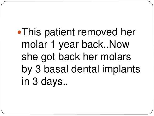 Dental implant technique/cost of replacing molar teeth