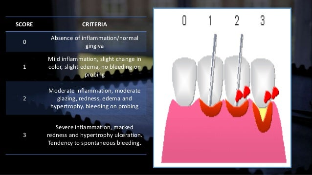 Dental Indices