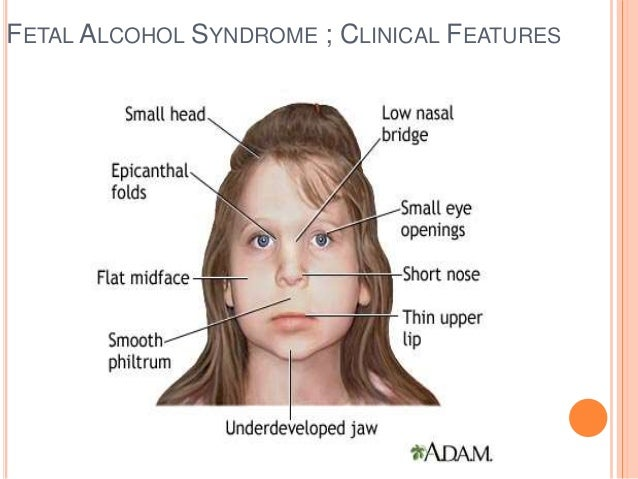 Dental Management Downs Syndrome Fetal Alcohol Syndrome