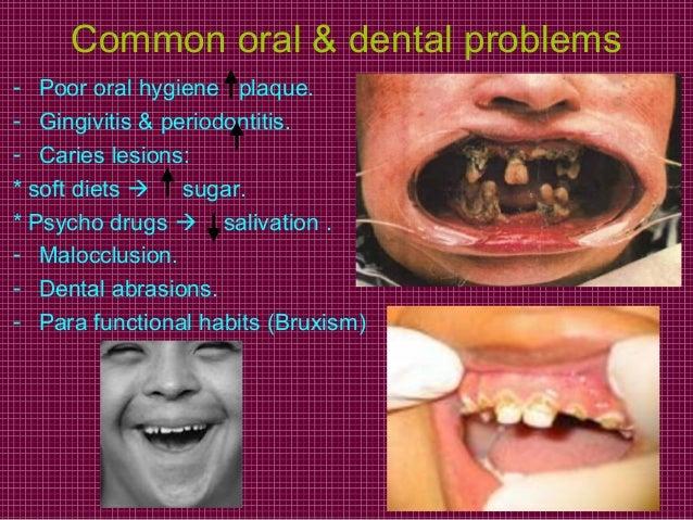 Dental management of handicapped children
