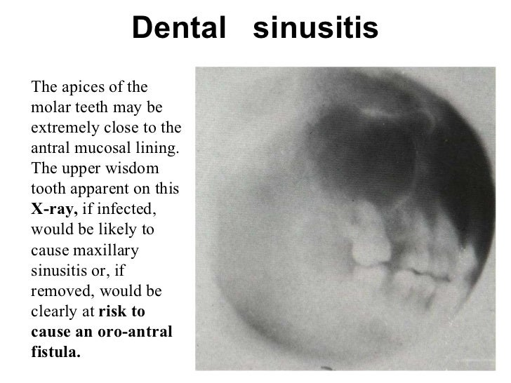 Upper Wisdom Tooth Infection dental sinusitis the a...