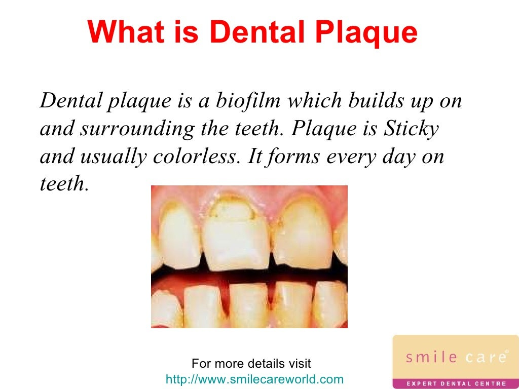 dental care and the war on plaque Princeton dentist, princeton dental care ltd is a local, trusted dental practice offering general and cosmetic dentistry, teeth whitening, implants, veneers & other dental care.