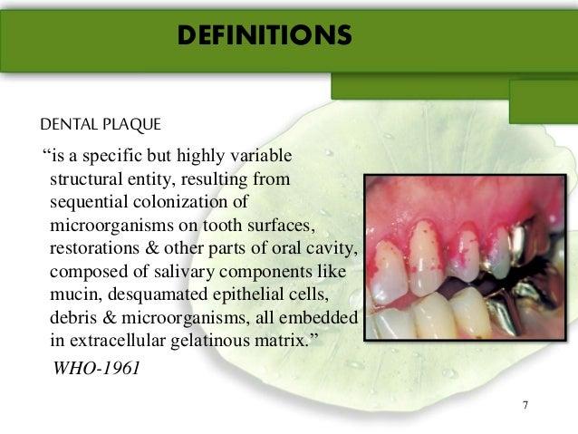 Dental plaque - Plaque de finition ...
