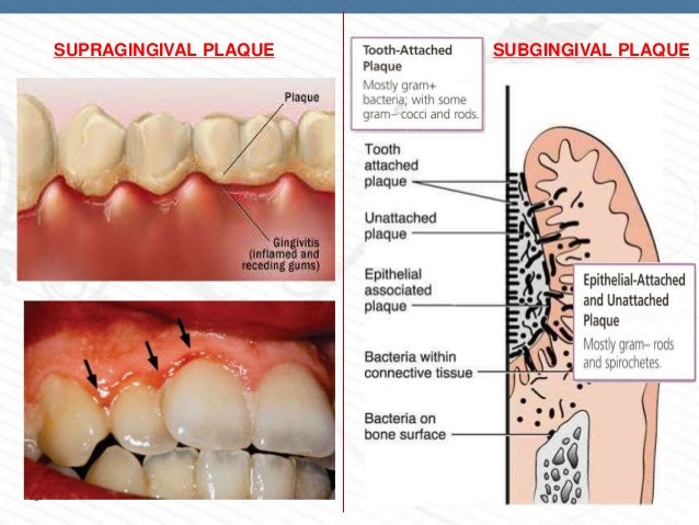 Image result for supragingival plaque