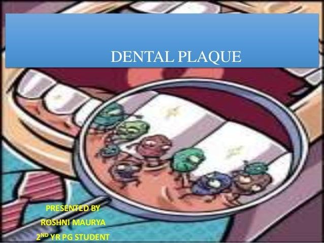 dental plaque. Black Bedroom Furniture Sets. Home Design Ideas