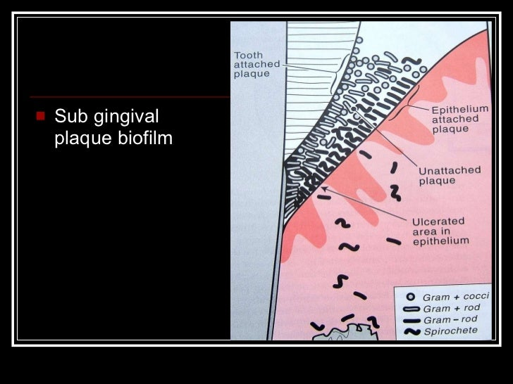 calculus formation relationship with plaque C calculus formation relationship with plaque:  calculus is formed by the deposition of calcium and phosphate salts in bacterial plaque these salts are present in.
