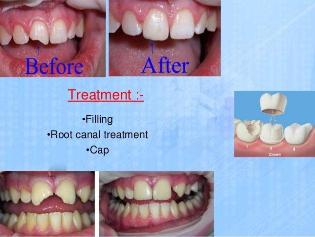 Dental problem and treatment