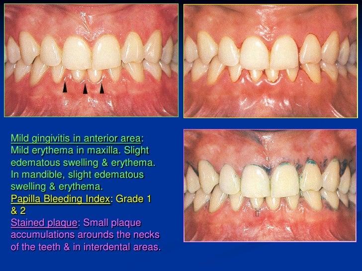 Dental Sharting
