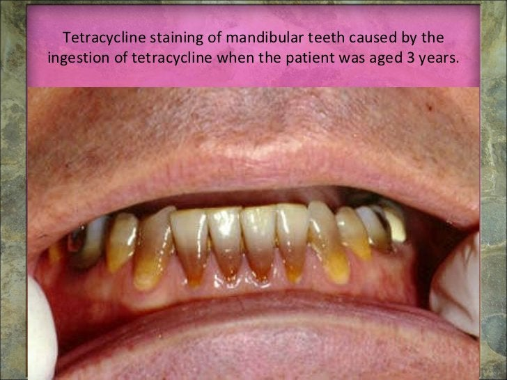 Tetracycline staining of mandibular teeth caused by the ingestion of tetracycline when the patient was aged 3 years.