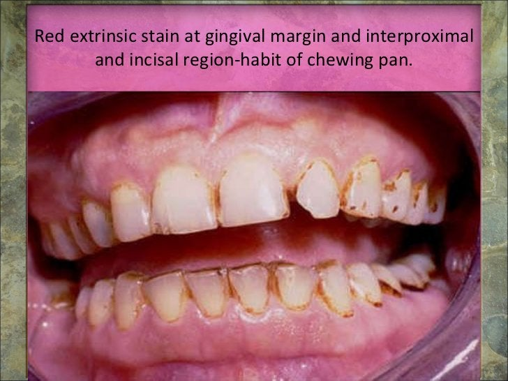 Red extrinsic stain at gingival margin and interproximal and incisal region-habit of chewing pan.