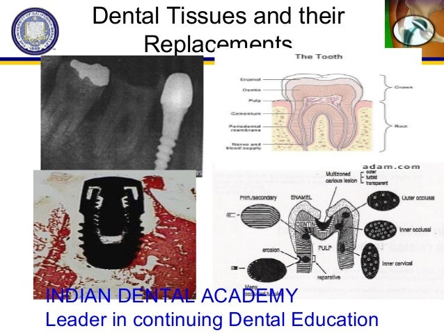 Dental Tissues and their Replacements INDIAN DENTAL ACADEMY Leader in continuing Dental Education
