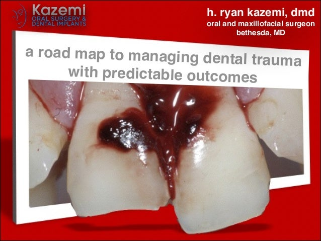 a road map to managing dental trauma! with predictable outcomes h. ryan kazemi, dmd! oral and maxillofacial surgeon! bethe...