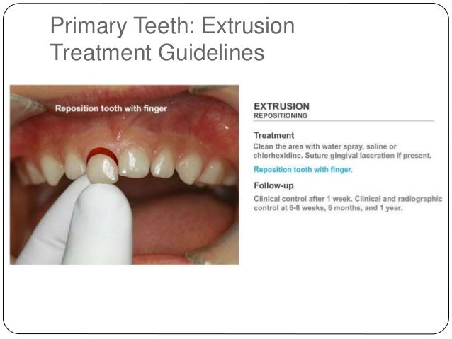primary and early dentition treatment Primary failure of eruption: further characterization of a rare eruption disorder karen e koehler, dds a thesis submitted to the faculty of the university of north carolina at chapel hill in partial.