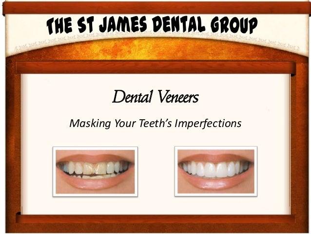 Dental VeneersMasking Your Teeth's Imperfections