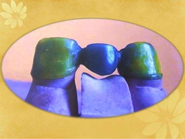 Dental Waxes Dental Materials Ppt