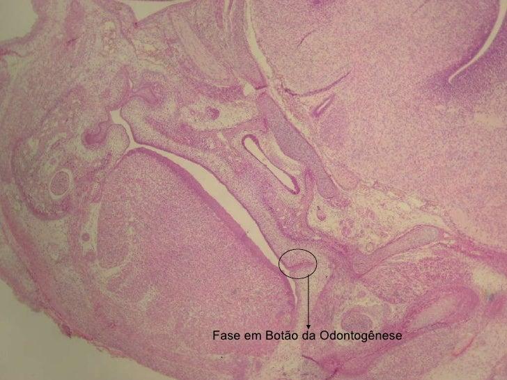 Fase em Botão da Odontogênese