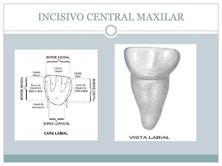 Anatomia Dental: denticion decidua o temporal, dientes temporales o d…