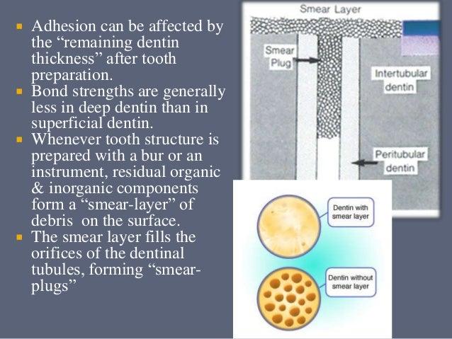 types of dental bonding agents dentin-bonding-agents-36-638.jpg?cb=1430934575