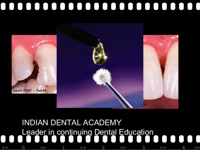 >> 0 >> 1 >> 2 >> 3 >> 4 >> INDIAN DENTAL ACADEMY Leader in continuing Dental Education